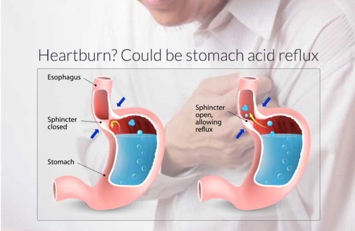 what causes heartburn ?